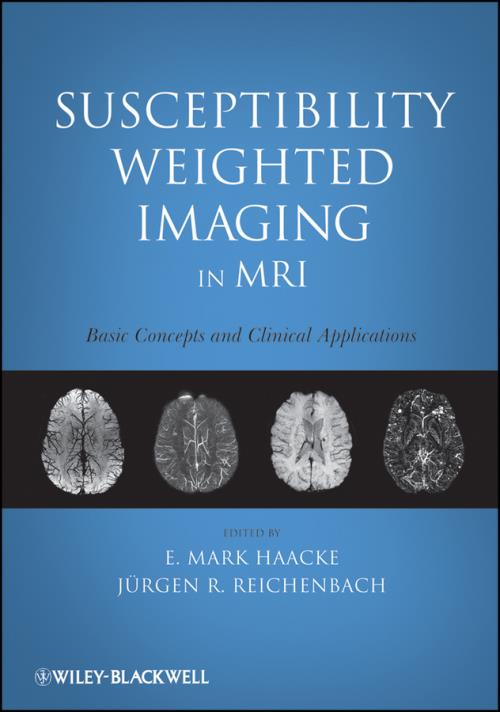 Susceptibility Weighted Imaging in MRI. Basic Concepts and Clinical Applications - Product Image
