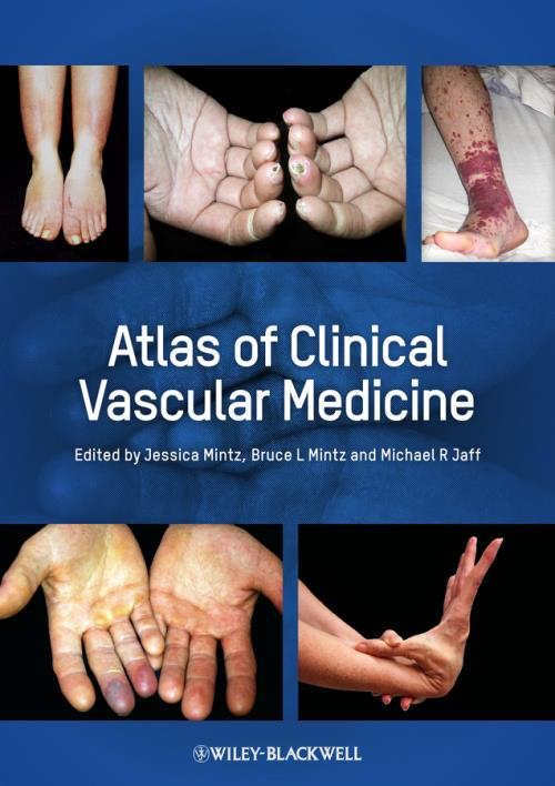 Atlas of Clinical Vascular Medicine - Product Image